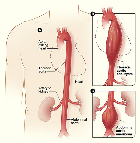 Abdominal Aorta Human Anatomy