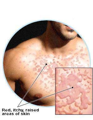 Hives Pictures and Information - Verywell