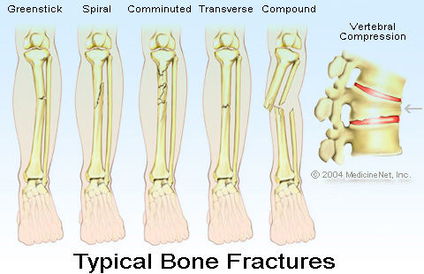 fracture causes clasifications treatment and medications broken hip diagram