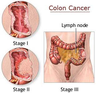 colorectal cancer - symptoms, causes, diagnose, treatment and, Human Body