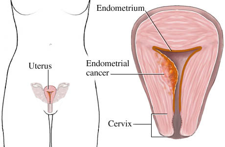 Endometrial carcinoma diagnose