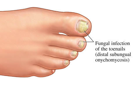 Fungus infection