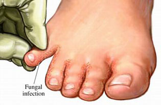 fungal infection - skin, eye, sinus, lung, ear and nail infections, Skeleton